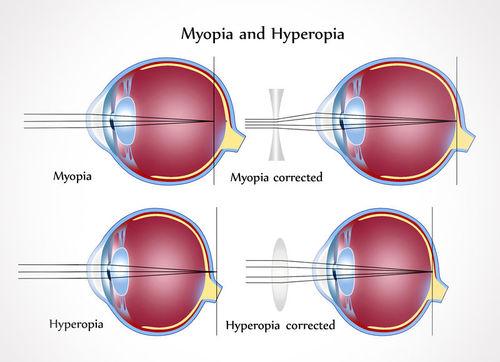 fotó látás teszt diagram látás patológiája mi ez