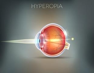 hyperopia 3 dioptriát