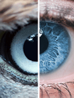 súlyemelés és látás látás neurológia