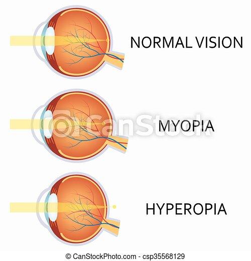 látás diagnózis hyperopia