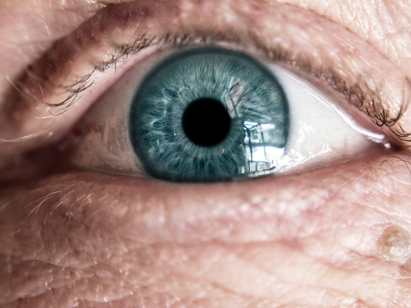 látás keratoconus helyreállítása)