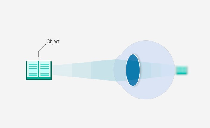 Mi a presbyopia? | CooperVision