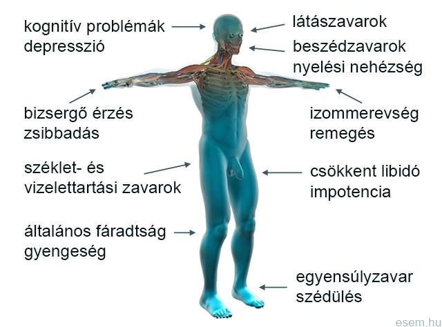 látási és testtartási problémák