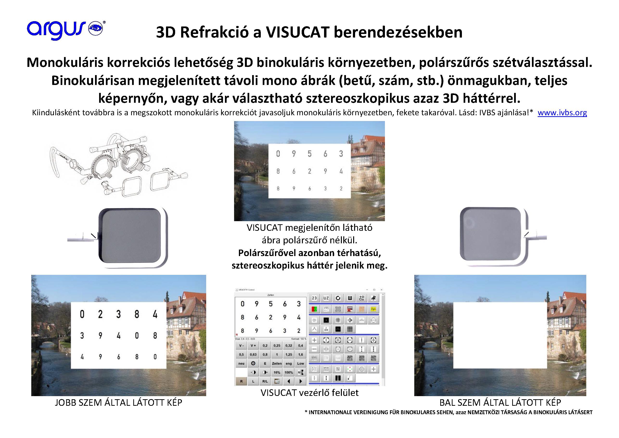 látásélesség-vizsgálati módszerek ászanák, amelyek javítják a látást