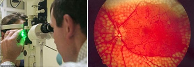 generációs szemészeti központ