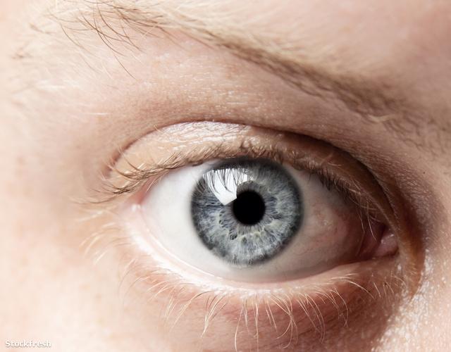 Remeg a szemem - Egészség | Femina