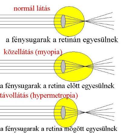 myopia hyperopia normál szem