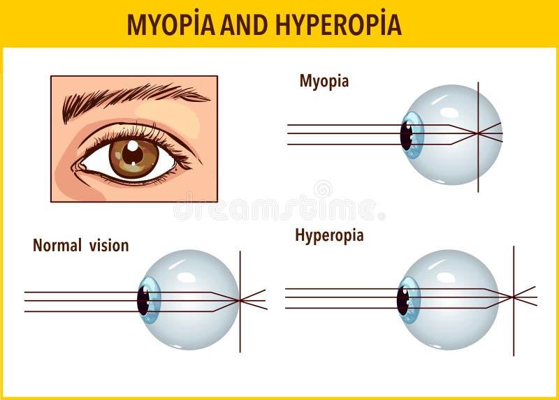 látási problémák és kezelésük