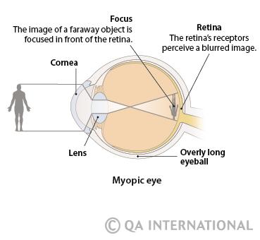 szem és látás myopia és hyperopia