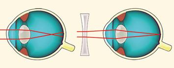 3 fokú myopia