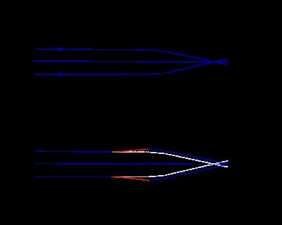 rövidlátás 30 cm usma és jövőkép