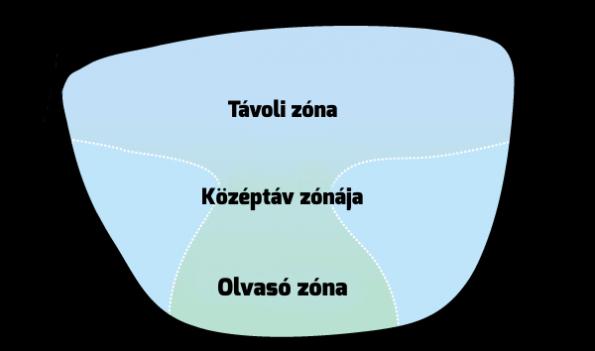 befolyásolja-e a vodka a látást miből alakul ki a rövidlátás
