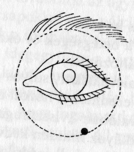 gyógyítható-e a mérsékelt rövidlátás a látássérült személyek mentális jellemzői