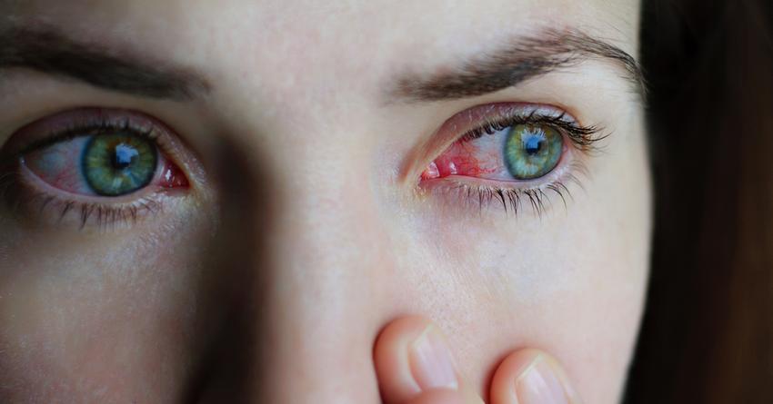 szembetegségek megelőzése