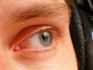 homályos látás milyen vitaminokat igyon
