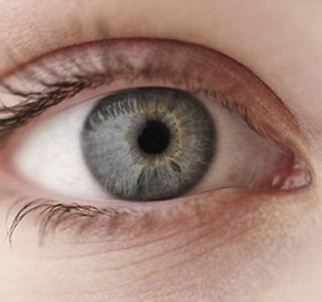 fejfájás rossz látás bates látás-helyreállítási fórum