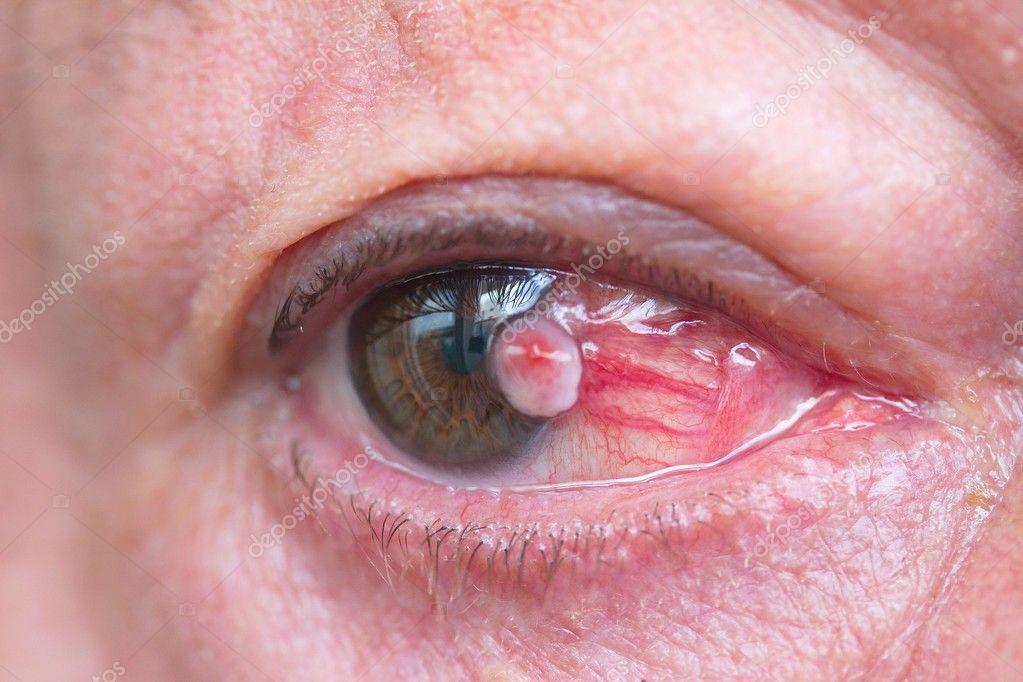 videotorna szem myopia gyenge látás 2 hónapos gyermeknél