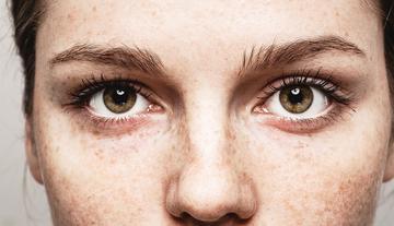 vizes szemek látása romlott