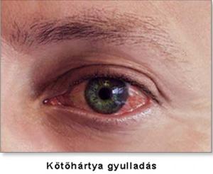 vírusos kötőhártya-gyulladásos szemész