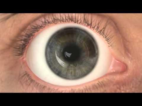 lézeres látáskezelés mi ez Hogyan készítsünk 100-as látást műtétek nélkül
