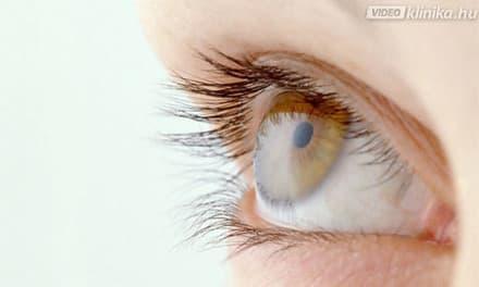 miért van más látás a szemekben)