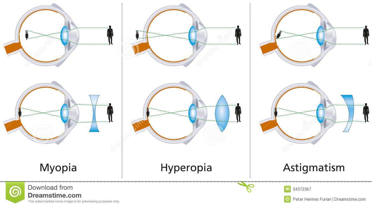 myopia gyógymód