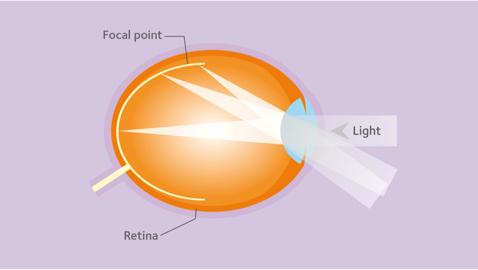 Sötétedik a szemekben - Myopia