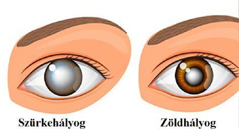 Hogyan működik a szemünk? - EgészségKalauz, Szem és látás téma