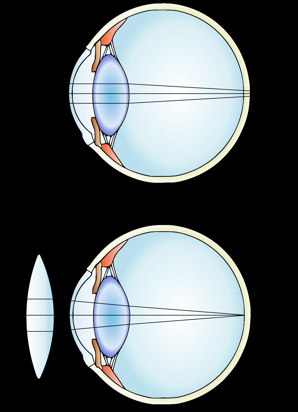 Hyperopia myopia vision. rövidlátás