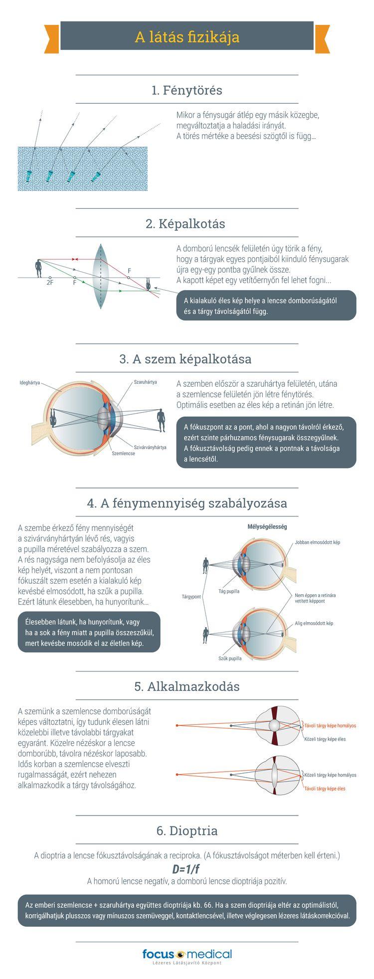 jó látási dioptriák