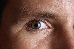 szembetegségek látása)