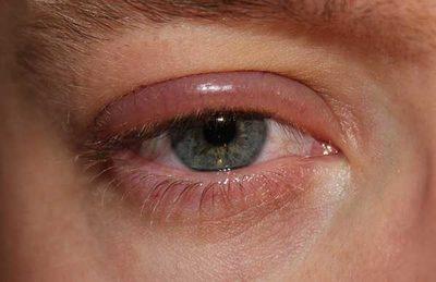 menopauza homályos látás