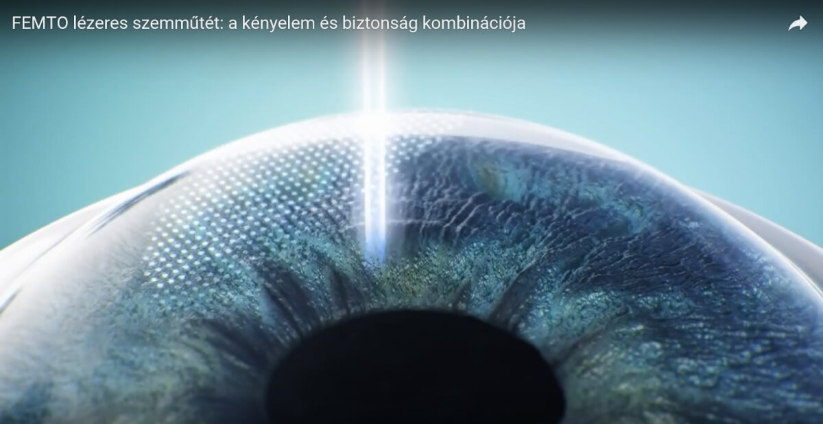 látáskezelés 40 év után látás mínusz 4 működés