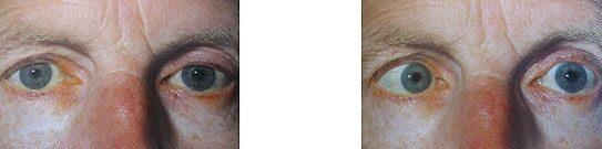 a szem fáj, és hirtelen elveszíti látását