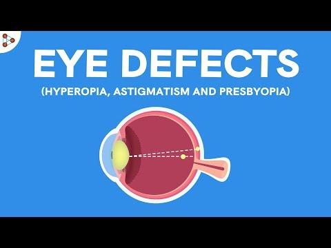 szem látás torna a szem számára különböző szemek rövidlátása