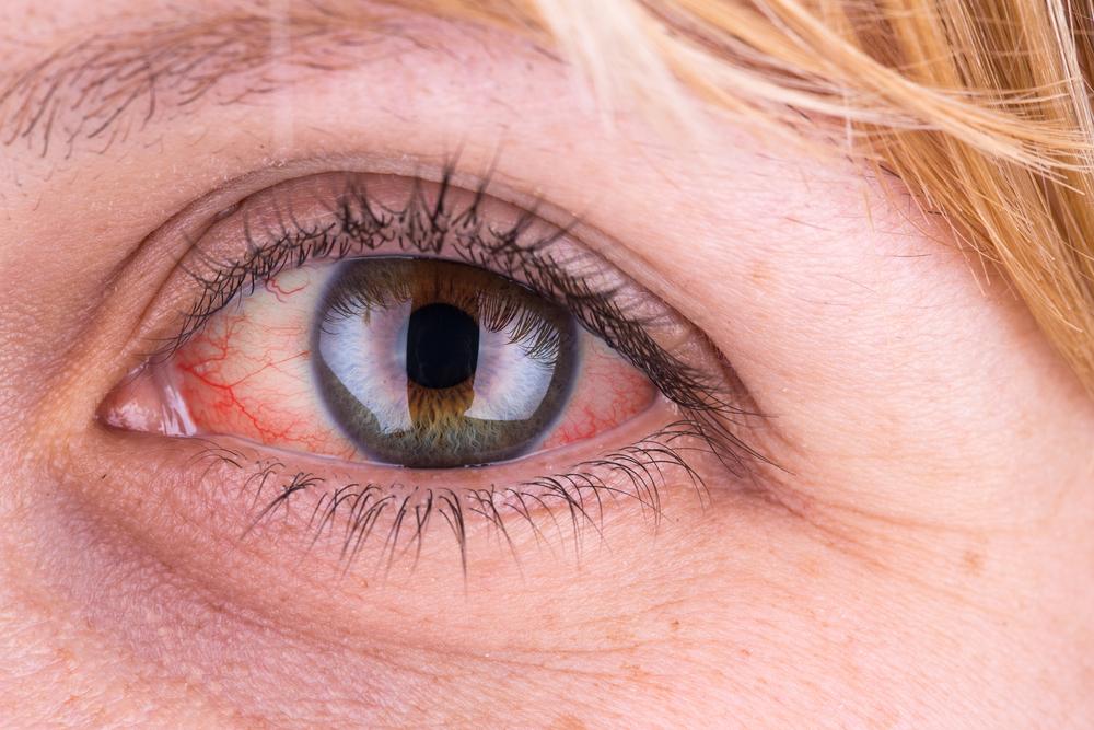 szem fül osteopath myopia