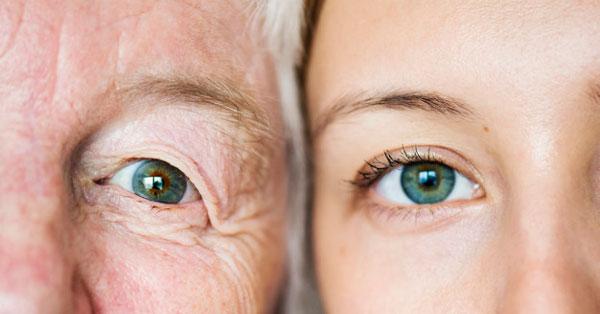 amikor más látású szemek)