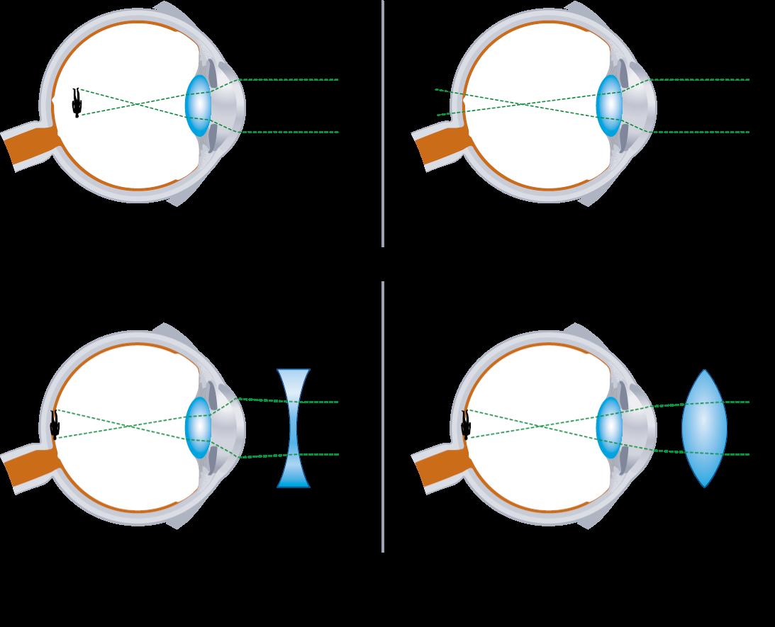 a rövidlátás rontja a látást