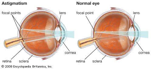 Korneregel, A látásvizsgálat előtt mi csöpög