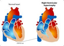 a szív- és érrendszer látásbetegsége