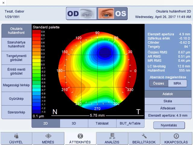 modern látásvizsgálati táblázat)