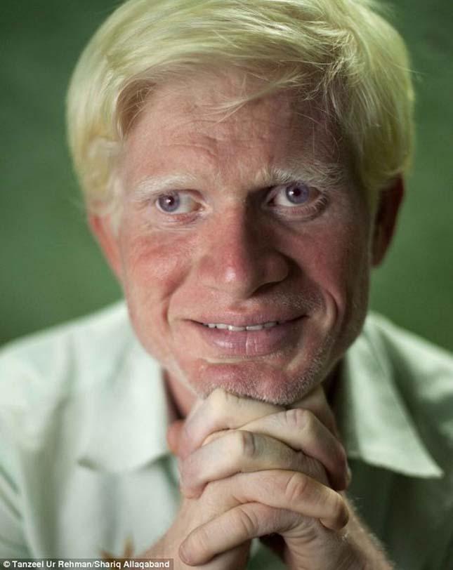 minden albínónak gyenge a látása