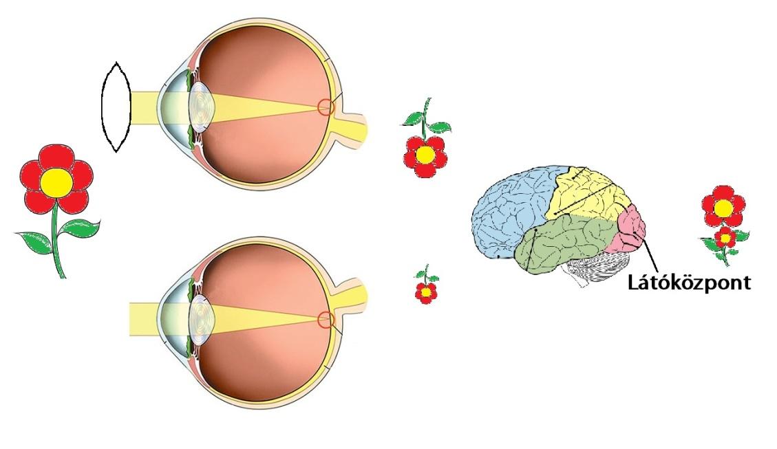 romlott a látás olvasás után