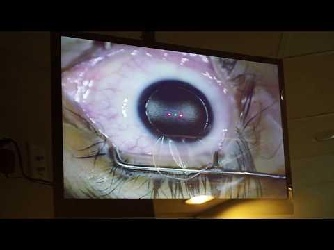 hogy a felbontás hogyan befolyásolja a látást Legeartis szemészeti Green Ave
