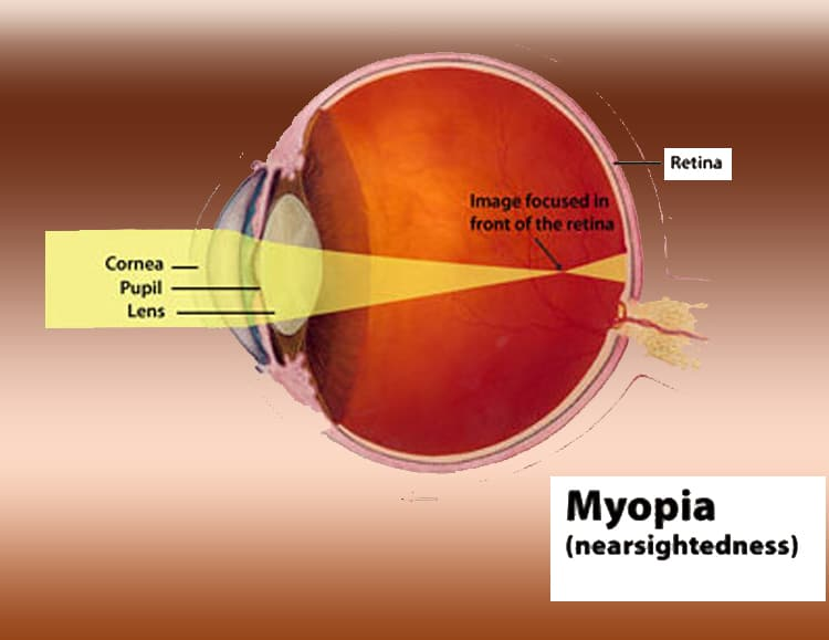 Szállás myopia hyperopia, Mi a myopia és a hyperopia - Sérülések - August