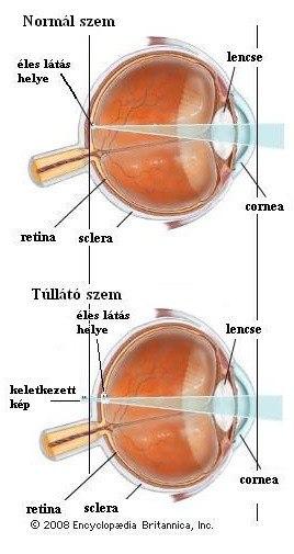 Könyv a látás kezelésére