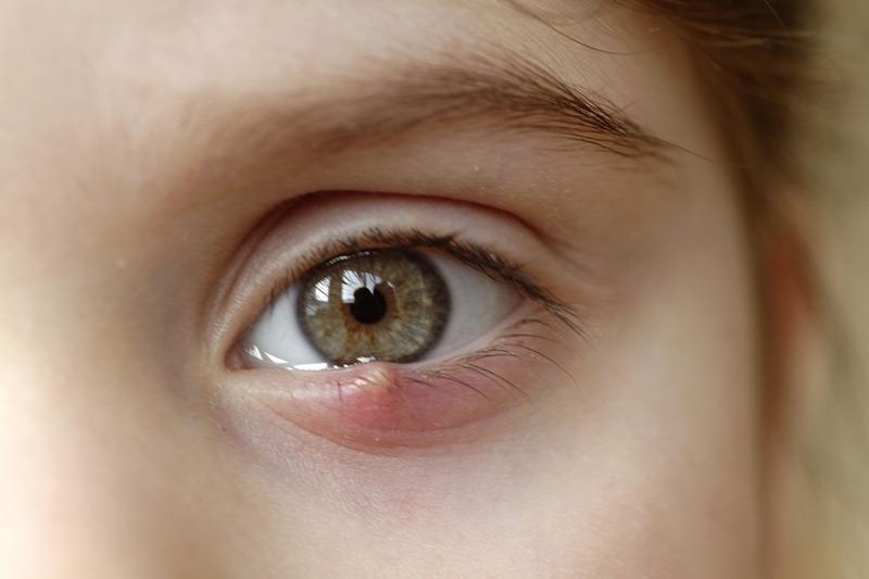 látás sárga folt
