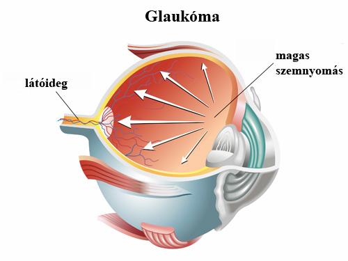 glaukóma látásélesség