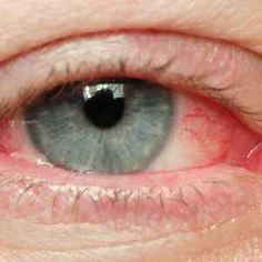 a látás legjobb kezelése