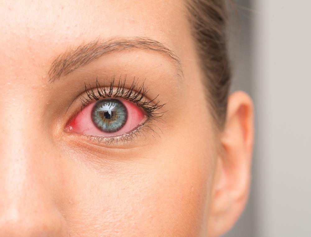 a britek eltávolítják a retina az Egyesült Arab Emírségek bejáratánál
